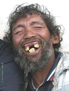 Ugly Man With No Teeth