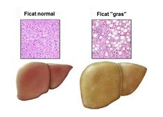 The Big Diabetes Lie - Natural Cure For Fatty Liver - How To Cure Fatty Liver Naturally Fatty Liver Remedies, Metabolic Syndrome, Liver Disease, Natural Birth, Medical Problems, Foods To Avoid, Healthy Fruits, Healthy Salads, Healthy Food