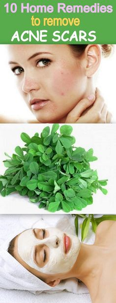 10 Home Remedies to Remove Rigid Acne Scars. Get rid of ugly acne marks with natural and herbal products, that really work ! http://www.feminiya.com/10-home-therapies-to-erase-acne-scars/