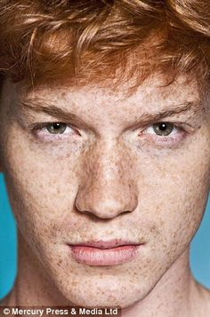Knight said: 'There is an institutionalised stigma prevalent in the UK especially' against those with ginger hair.' LOVE these freckles!