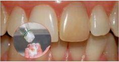 Per sbiancare i tuoi denti basta metterne un goccio per 5 minuti: Non crederete ai vostri occhi!