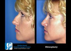 View hundreds of rhinoplasty before and after photos performed by Wisconsin double-board certified facial plastic surgeon Dr. Facial Cosmetic Surgery, Nose Reshaping, Rhinoplasty Before And After, Nose Surgery, Surgery Center, Remedies, Face, Beauty, Home Remedies