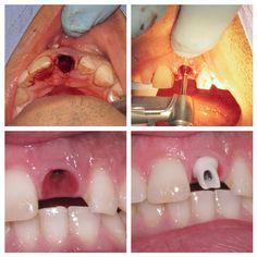 #odontologia #odontologo #dientes #sonrisa #dentistry #dentist #teeth #smile #anatomiadental #odontologiarestauradora #odontologiaestetica #esteticadental #dentalesthetics #odontologiarehabilitadora #rehabilitacionoral #prostodoncia #prosthodontics #protesisdental #protesisfija #coronas #carillas #resinas #pasionporlaodontologia #odontofotosreales #líneaoral @biomet3i