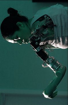 Claudia Mitchell - first woman to have a bionic arm - a prosthetic limb that she controls with her mind.
