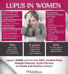 Systemic lupus is an autoimmune disease that affects multiple organ systems. Discover 19 strategies to use in order to heal systemic lupus naturally. Disease Symptoms, Autoimmune Disease, Lupus Flare Symptoms, Lupus Flare Up, Psoriasis Symptoms, Lupus Support, Lupus Facts, Lupus Nephritis, Fibromyalgia