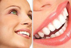 Lucí unos dientes sanos y blancos Bs. 90 en vez de Bs. 150 por limpieza dental + blanqueamiento + fluor en Clarident