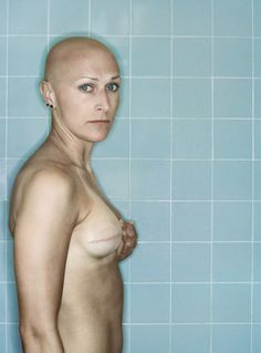 Cancer photo essay