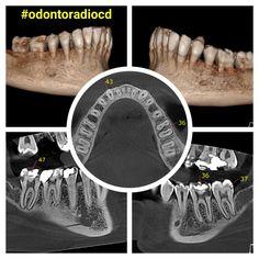 Lesões cariosas visíveis em tomografia computadorizada. #odontoradiocd #odontologia #tomografia #tomografia #imagem #xray #tomography #imaging #implantodontia #lajeado #teutônia #santacruzdosul