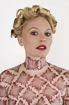 Artist Turns Her Rare Skin Condition Into An Inspirational Art Project