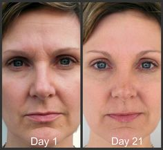 Facial aerobics workouts to look younger and give oneself a facelift without surgery. Face toning exercises for a more youthful looking skin: Discover facial yoga regimens for cheek and face tightening Nerium Results, Natural Face Lift, Nerium International, Facial Yoga, Face Lines, Face Exercises, Uneven Skin, Face Skin, Nu Skin