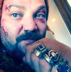 Bam Margera Gets Beat Up By Icelandic Thug Rappers