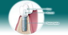 Dental implants are composed of three parts: the titanium implant that fuses with the jaw, an abutment and a crown. Dental Implant Surgery, After Surgery, Healing, Tips, Recovery, Hacks