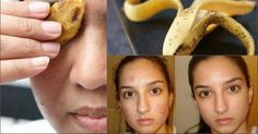 Vários Benefícios da Casca da Banana para Rugas   Saúde em Dia