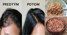 Sú vaše vlasy krehké, rastú pomaly, štiepia sa im končeky či dokonca vypadávajú? Potom určite musíte vyskúšať tento tajný babičkin recept!