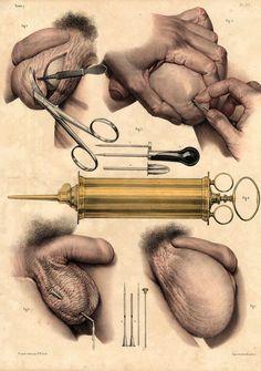 Jean-Baptiste Marc Bourgery (1797-1849 https://pinterest.com/pin/287386019948321810), Nicolas Henri Jacob. [Traité complet de l'anatomie de l'homme comprenant la médecine opératoire (1831-1854 https://pinterest.com/pin/287386019941966857/)].