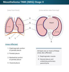 Cool Mesothelioma Stages - Find Out What Your Stage Means   Understanding Mesothelioma