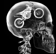 KTM x-ray.  iv always wonder what was in the boys head