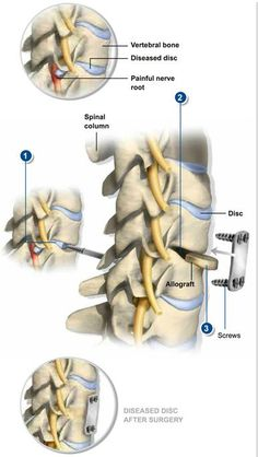 Anterior Cervical Discectomy & Fusion removes a herniated or diseased disc and relieves neck and radiating arm pain caused by parts of the disc pressing on nerve roots. #spine #health
