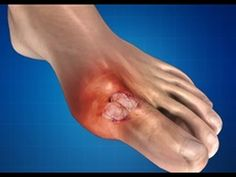 Gout: Treatment, Causes, Massage Therapy, Prevention - YouTube