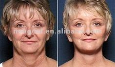 Improve skin elasticity and muscle tone of the face and neck with a facelift & necklift at La Jolla Cosmetic Surgery Centre in San Diego. We can help you restore a rested and youthful contour to the face. Plastic And Reconstructive Surgery, Plastic Surgery, Mini Face Lift, San Diego, Lotion Tonique, Chic Over 50, Neck Lift, Red Light Therapy, Les Rides