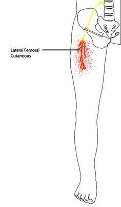 Meralgia Paresthetica or Bernhardt-Roth Syndrome