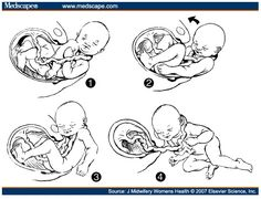 Auch mit Nabelschnur um den Hals ist eine natürliche Geburt möglich!