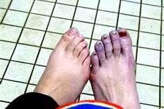 Raynaud Phenomenon - My daughters call this dead feet.