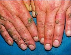 As verrugas são causadas pelo vírus do papiloma humano (HPV), que tem mais de cem subtipos.Elas geralmente são inofensivas e, em algumas pessoas, costumam surgir com frequência, indicativo de queda na imunidade.