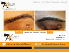 Eyebrow Transplant Surgery Before and After – 100 Grafts by Dr Kapil Dua Eyebrow Hair Transplant, Hair Transplant Results, Hair Transplant In India, Aesthetic Dermatology, Before After Photo, Lip Fillers, Hair Loss, Surgery, Clinic