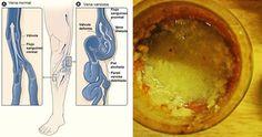 Le vene varicose sono uno dei problemi estetici più sgradevoli che colpisce milioni di persone in tutto il mondo. Compaiono sulle gambe e sui glutei e, se non trattate in tempo, possono divenire cr…