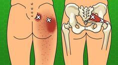 Sciatica Stretches to Prevent and Relieve Hip and Lower Back Pain Sciatica Stretches, Sciatic Pain, Sciatic Nerve, Nerve Pain, Muscle Piriforme, Muscle Strain, Hip Pain, Low Back Pain, Lumbar Spinal Stenosis