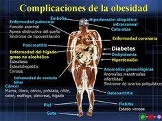 cirugia bariatrica. http://www.farmaciafrancesa.com/home.asp
