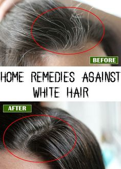 The majority of people who have white hair suffer of lower self-esteem and feel unattractive, that is why they search for different options to get rid of it. If you are one of them, lower are described several homemade remedies that will help you maintain the natural color of your hair.