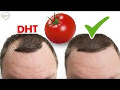 Androgenetic Alopecia or Male Pattern Baldness is the commonest cause of Hair loss and balding in both men and women. The hormone DHT (Dihydrotestosterone) p. Hair Cure, Hair Loss Cure, Hair Loss Remedies, Prevent Hair Loss, Dht Hair Loss, Prp For Hair Loss, Androgenetic Alopecia, Alopecia Hair Loss, Hacks