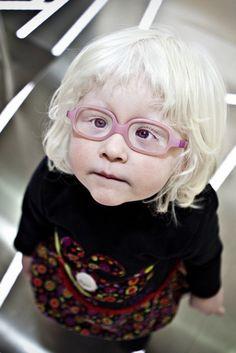 Día Internacional del Albinismo: curiosidades sobre esta alteración genética