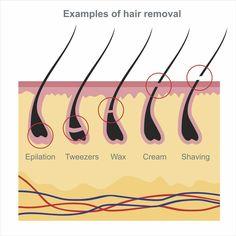 Sugaring Hair Removal, Hair Removal Diy, Hair Removal Methods, Laser Hair Removal, Electrolysis Hair Removal, Natural Hair Removal, Hair Removal Cream, Waxing Tips, Unwanted Hair
