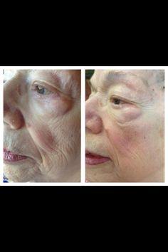 More amazing results using Nerium