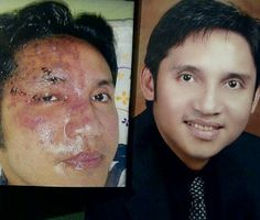 Before & After using Luminesce - Forever Young with Jeunesse Global