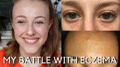 Tonight's video is a bit of a personal one, all about my battle with eczema and sensitive skin. Please feel free to share your experiences and tips for dealing with eczema in the comments