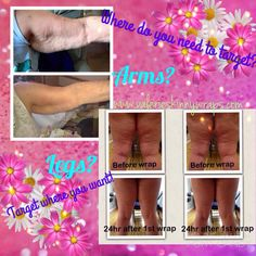 Oh my goodness! Results from one of my new loyal customers!  Just on her first box of wraps! Tighten, tone & Firm in as little as 45 minutes! How to order! ✨Click Shop✨ ✨Click Body✨ ✨Click Ultimate body applicator ✨Checkout when ready, then follow steps to become a loyal customer!✨ Make sure you click the Green Button first and access the discounts Contact me if any questions! 615-630-4993 /valeriewrapstn@yahoo.com  order here  Www.valerieskinnywraps.c