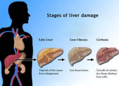 liver fibrosis pictures - Ask.com Image Search