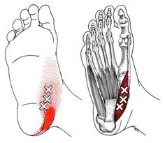 Abductor Hallucis trigger point diagram, pain patterns and related medical symptoms. The myofascial pain pattern has pain locations that are displayed in red and associated trigger points shown as Xs. Massage Tips, Massage Techniques, Massage Therapy, Foot Massage, Medical Symptoms, Referred Pain, Dry Needling, Stress Management, Trigger Point Therapy