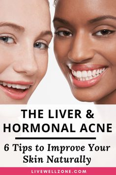 skin detox Liver and Hormonal Acne: 6 Tips To Improve Your Skin Naturally Acne Treatment At Home, Cystic Acne Treatment, Acne Treatments, Scar Treatment, Hormonal Acne Remedies, Greasy Skin, Dry Skin, Clear Skin Tips, How To Get Rid Of Acne