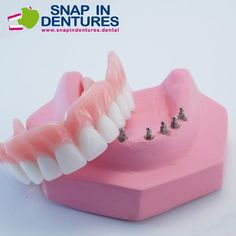 Snap in Dentures use 8 mini implants to stay in place. They are a great alternative to regular dentures. They are strong and have no palate roof. #dentures #dentalimplant #cancun #dentist #dentistry by snapindentures Our General Dentistry Page: http://www.lagunavistadental.com/services/general-dentistry/ Google My Business: https://plus.google.com/LagunaVistaDentalElkGrove/about Our Yelp Page: http://www.yelp.com/biz/fenton-krystle-dds-laguna-vista-dental-elk-grove-3 Our Facebook Page…