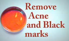 Remove Acne and Black Marks Naturally