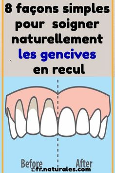 8 façons simples pour soigner naturellement les gencives en recul #soins #naturel #gencives #remede Fitness Gifts, Health Fitness, Cold Treatment, Infused Water Bottle, Self Massage, Atkins Diet, Natural Medicine, Weight Training, Natural Health
