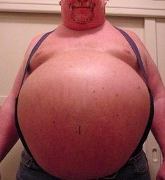 The Extreme Health Dangers of Excess Abdominal Fat - LOL - Great article, check it out!