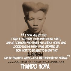 """""""I now realize that I have a platform to inspire young girls, and as someone who never had a role model who looked like me when I was growing up, I now hope to be able to show that albinism can be beautiful and is just another kind of normal."""" – Thando Hopa  #SouthAfrican #African #Africa #Motherland #Model #Albino #Beauty #Unique #Inspiration #Young #Girls #Role #GrowingUp #Albinism #Beautiful #Normal #Quote  #RSAQuotes  www.twitter.com/rsaquotes www.pinterest.com/rsaquotes…"""