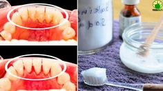 ❀ TARTAR REMOVAL - When I have TARTAR ON MY TEETH I Only Use This Unique...