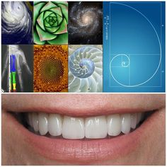 We use the golden proportion rule in cosmetic dentistry to determine the size teeth should be relative to one another. We do this in order to create the most aesthetically pleasing smile possible. Scientists who study beauty find this ratio in the faces of people who are generally considered beautiful. For example; the distance between ones eyes lips and chin are in the same proportion as the widths of the central incisor lateral incisor and canine. The golden proportion is found throughout…
